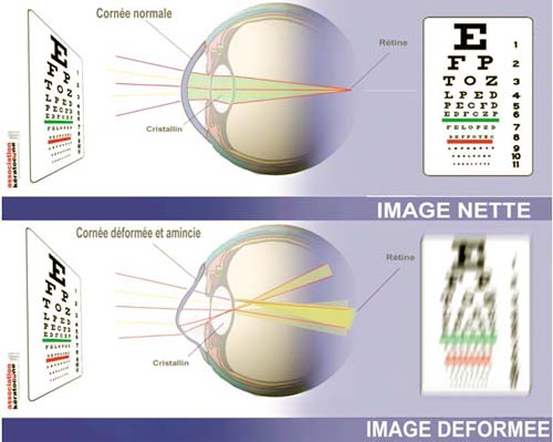 kératocône : dégénérescence de la cornée